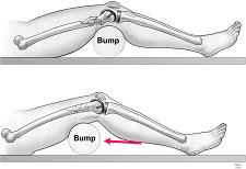 """Fig.1 – Coxim (""""bump"""") sob o joelho ou sob o foco de fratura.            Fonte: Horwitz et al. J Bone Joint Surg Am. 2009;91:2970."""
