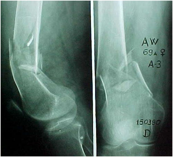 Fig.4-A/B – Paciente de 69 anos – Fratura supracondileana fêmur. Pré-operatório (A).                      Pós-operatório (B)