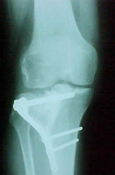 Fig.8 – Fratura planalto tibial lateral fixada com placa não bloqueada. Fonte: Hospital Novo Mundo / Curitiba-PR.