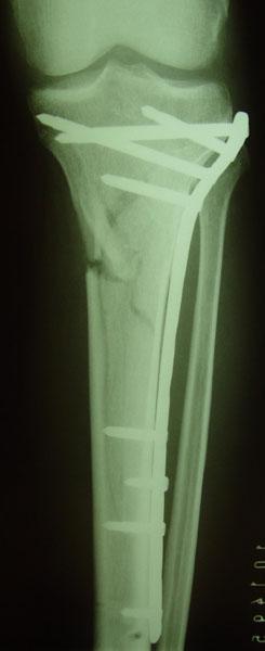 Fig.9-A/B – Fratura bicondilar do planalto tibial com grande fragmento medial fixada                       com placa bloqueda..         Fonte: Hospital Novo Mundo / Curitiba-PR.