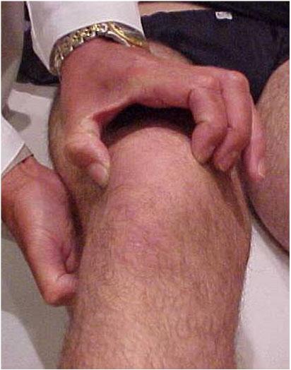 Fig.10 - Ex. físico - Báscula / Inclinação patelar lateral