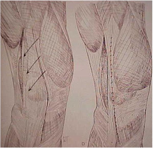 Fig.15 - Liberação da retinácula lateral / Avanço tendão do vasto medial