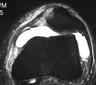 Fig.18 - Ligamento femoropatelar medial (LFPM) – Ressonância - lesão