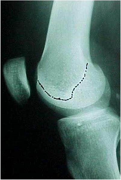 Fig.2 - Tróclea femoral displásica