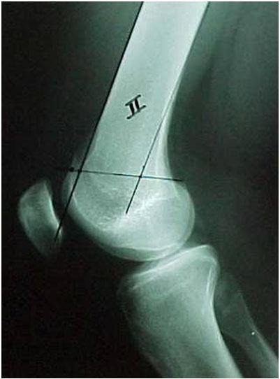 """Fig-4-B – Radiografia da """"saliência"""" da tróclea"""