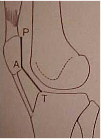 Fig-6-A – Desenho da medida do Índice Patelar (IP) – Caton-Deschamps