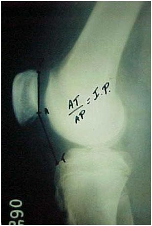 Fig.-¨-B – Radiografia em perfil absoluto – I.P segundo Caton-Deschamps