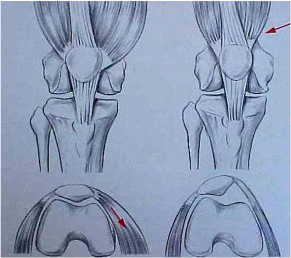 Fig.8 – Desenho da displasia músculo vasto medial