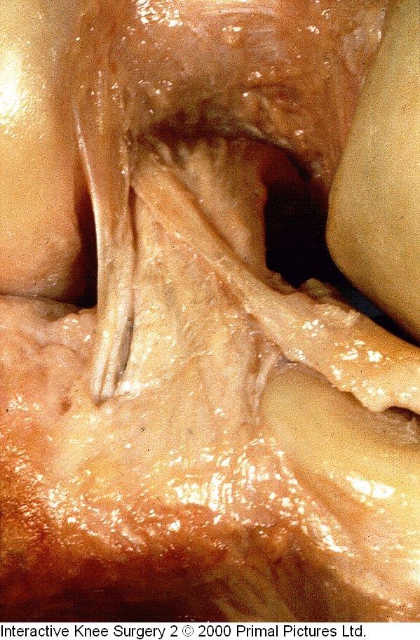 Fig.1-C = LCP / ligamentos menisco-femorais. Fonte: Interactive Knee Surgery 2 / 2000.             Primal Pictures Ltda.