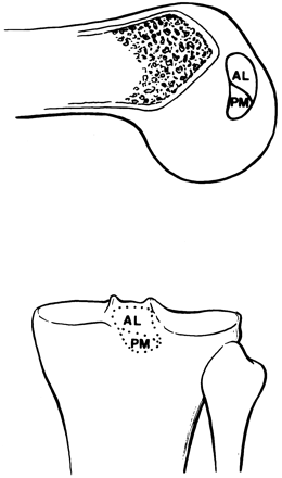 Fig.2-A = Áreas de inserção femoral e tibial do LCP. AL – banda anterolateral. PM – banda            posteromedial. Fonte: Herner e Höher 26: 471-482, 1998.