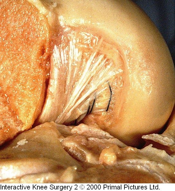Fig.2-B = LCP – inserção femoral. Fonte: Interactive Knee Surgery 2 / 2000. Primal Pictures Ltda.