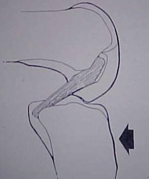 Fig.4-A - B = Mecanismo de trauma – Queda / trauma em flexão – extensão.                 Fonte: Miller M. Sports Medicine And Arthroscopy Review 2: 101, 1994.