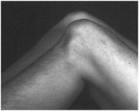 """Fig.6 = Teste da Gaveta Posterior – """"posterior SAG"""" / """"queda posterior da tíbia"""".             Fonte: Hospital Novo Mundo."""