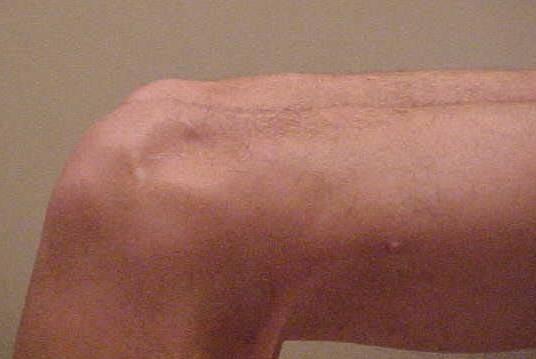 Fig.8 = Queda TAT c/ flexão quadril e joelho a 90°. Fonte: Hospital Novo Mundo.