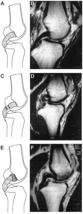 """Fig.11 = Ressonância Magnética – A-B: LCP normal  /  C-D: lesão no corpo do LCP /         E-F: desinserção do fêmur (""""peel off"""").         Fonte: Harner e Höher 26: 471-482, 1998"""