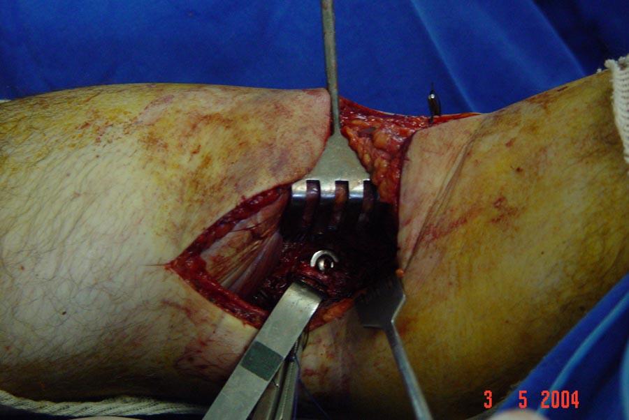 fixação c/ parafuso e arruela – per-operatório