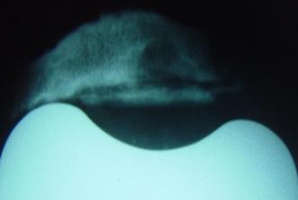 Fig.3 – Ap. extensor – soltura do componente patelar