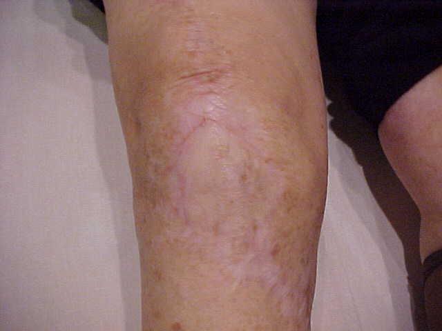 Fig.5 – Problemas de pele
