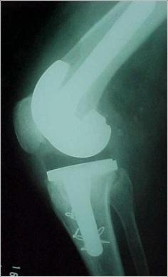 Fig.6-B – Osteotomia      da TAT