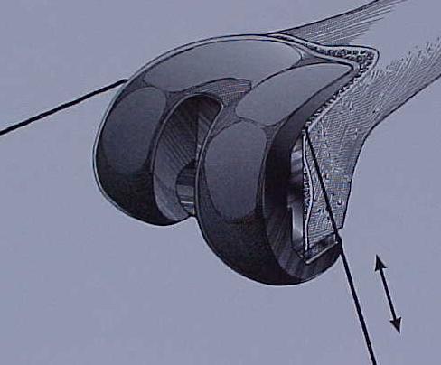 Fig.7 – Esquema de retirada do componente femoral – serra de Giglie