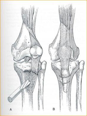 Fig.-14 – Osteotomia TAT