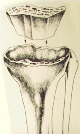 Fig.25-A – Esquema de reconstrução com enxerto ósseo estrutural