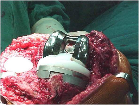 Fig.26-B – Blocos metálicos na tíbia e fêmur – pér-operatório