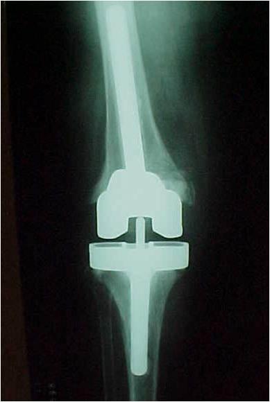 Fig.26-C – Radiografia pós-reconstrução com blocos metálicos no fêmur e tíbia