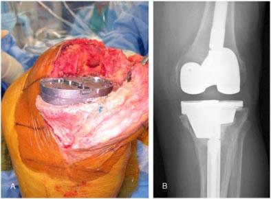 """Fig.27-B – Perda óssea tibial tratada com """"tantalum"""" e radiografia pós-operatória –                    Long e Scuderi (34)"""