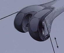 Fig.7 – Retirada componente femoral – Serra de Giglie